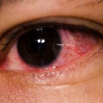 Common Causes of Red Eyes