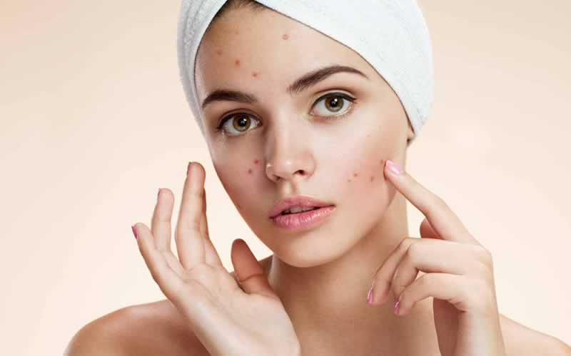 10 Ways On How To Get Rid Of Acne