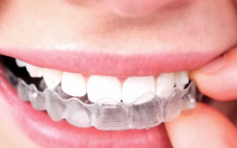 How Much Does Invisalign Cost - Hosbeg.com