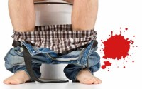 What does it mean when you poop blood?